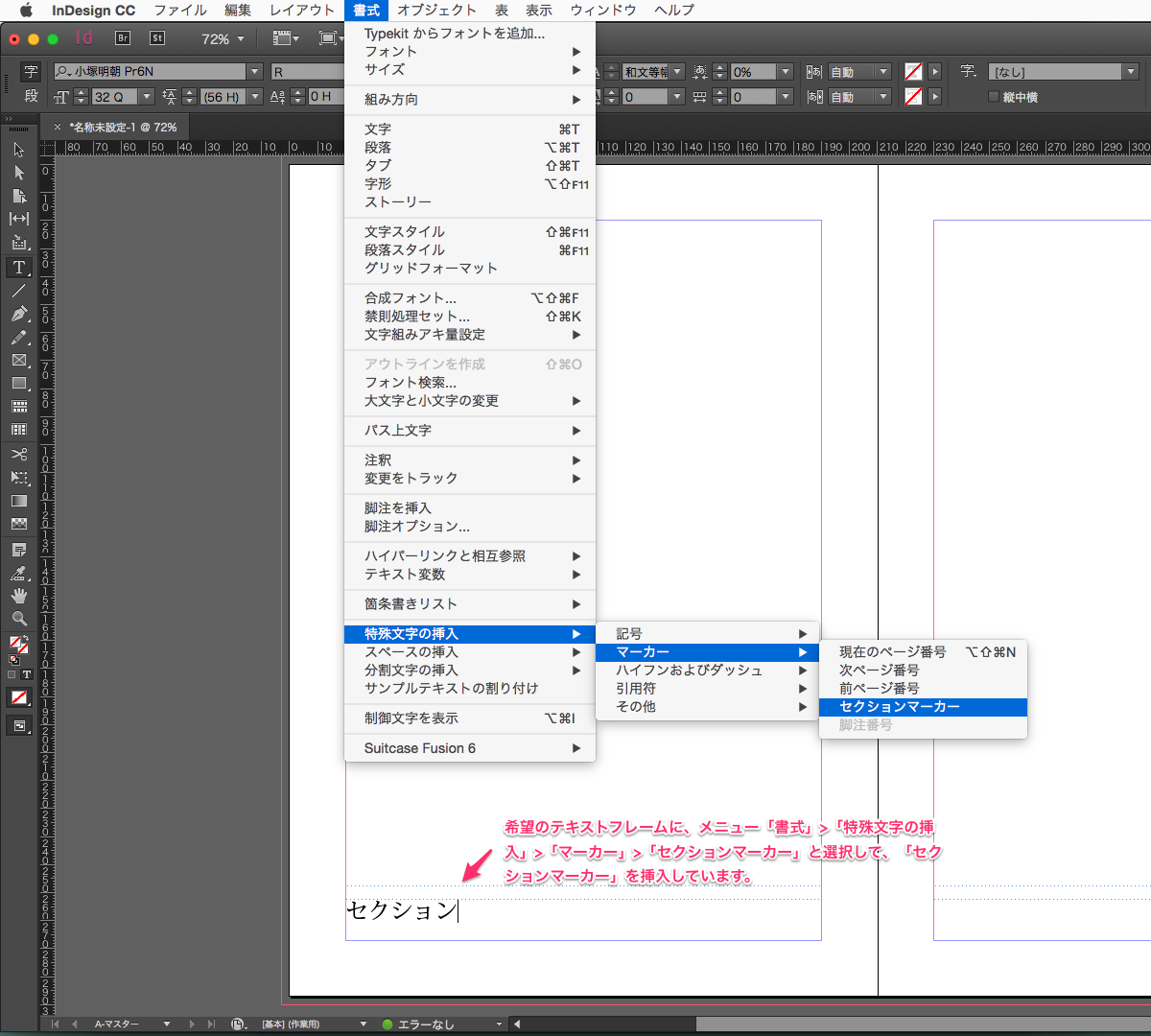 http://www.too.com/support/toocare/faq/indesign_section_marker_1.png